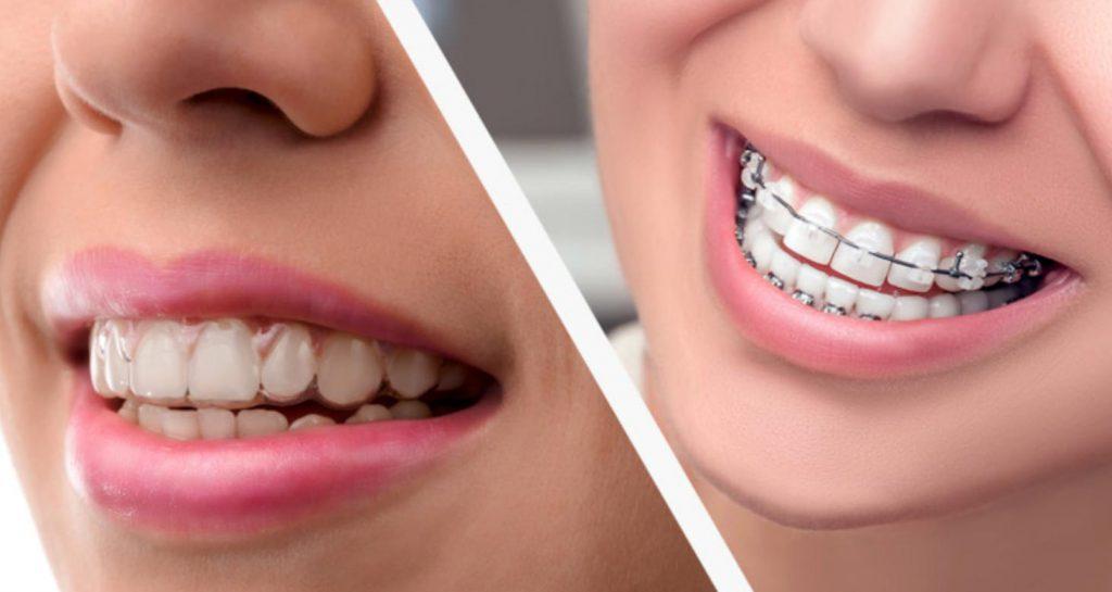 braces dentist near me