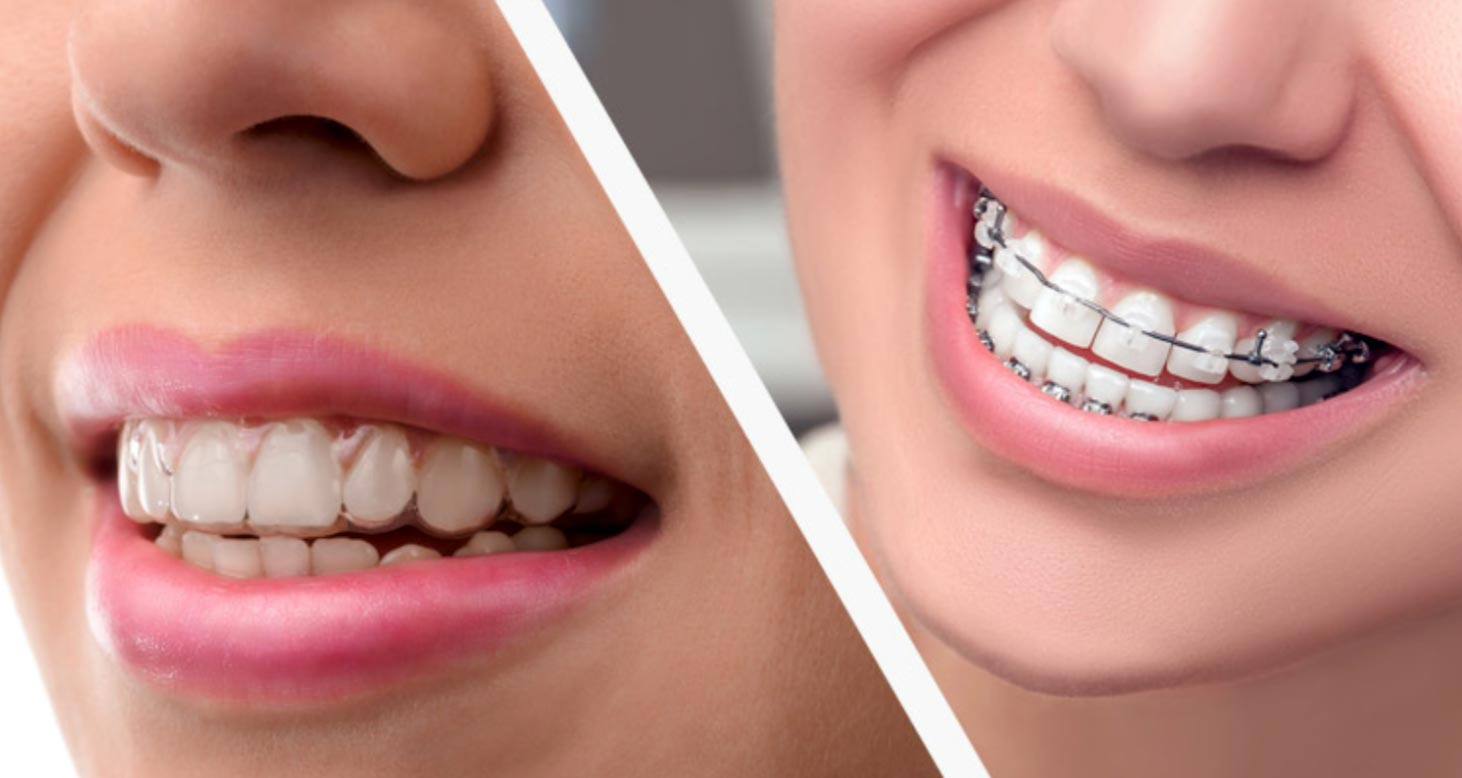 Differences Between Invisalign and Traditional Dental Braces
